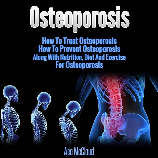 Osteoporosis: How To Treat Osteoporosis: How To Prevent Osteoporosis: Along With Nutrition, Diet And Exercise For Osteoporosis, Ace McCloud
