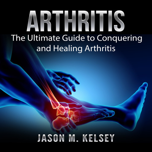 Arthritis: The Ultimate Guide to Conquering and Healing Arthritis, Jason M. Kelsey