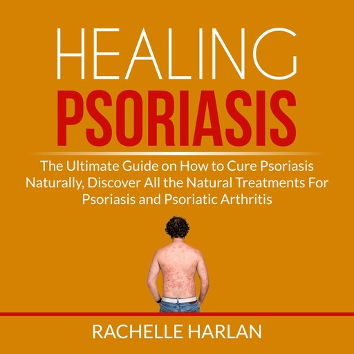Healing Psoriasis: The Ultimate Guide on How to Cure Psoriasis Naturally, Discover All the Natural Treatments For Psoriasis and Psoriatic Arthritis, Rachelle Harlan