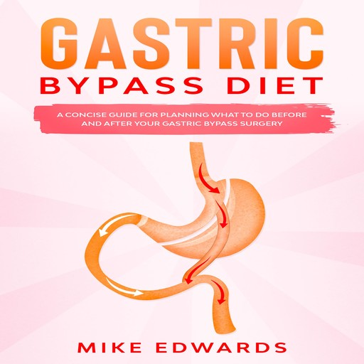 Gastric Bypass Diet: A Concise Guide for Planning What to Do Before and After your Gastric Bypass Surgery, Mike Edwards