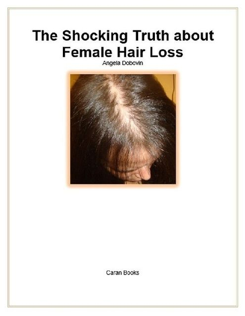 The Shocking Truth About Female Hair Loss, Angela Dobovin
