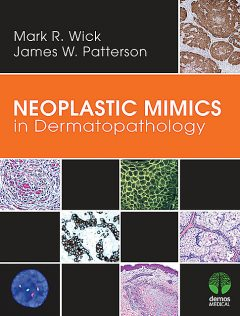 Neoplastic Mimics in Dermatopathology, James Patterson, Mark R. Wick