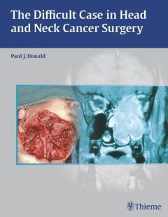Difficult Case in Head and Neck Cancer Surgery, Paul J.Donald