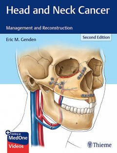 Head and Neck Cancer, Eric M.Genden