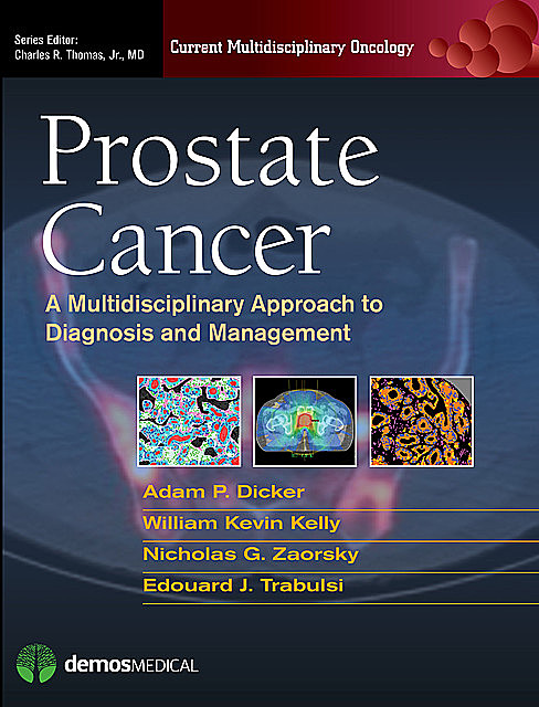 Prostate Cancer, William Kelly, Adam P. Dicker, Edouard J. Trabulsi, Nicholas G. Zaorsky