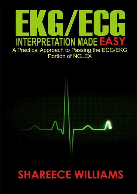 EKG/ECG Interpretation Made Easy, Shareece Williams