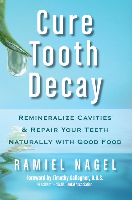 Cure Tooth Decay: Remineralize Cavities and Repair Your Teeth Naturally with Good Food , Ramiel Nagel