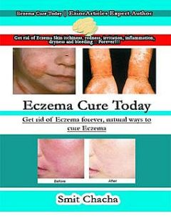 Eczema Cure Today: Get Rid of Eczema Forever, Natural Ways to Cure Eczema, Smit Chacha